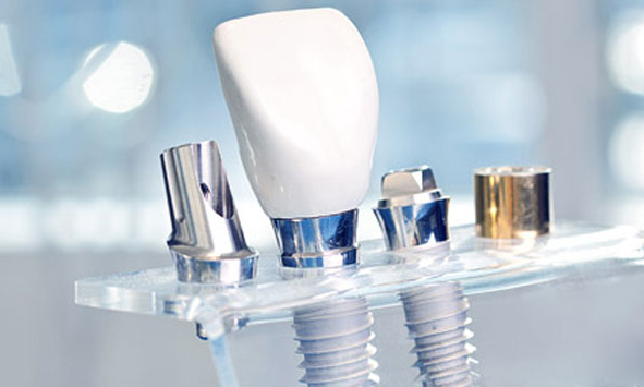 dental implants in Vijayawada